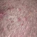 Acne on the scalp